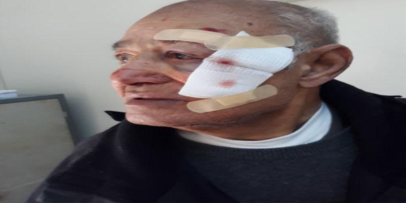 بالفيديو: صاحب محل لنسخ الوثائق يروي حادثة تعرضه للاعتداء والسرقة من قبل شخصين مسلحين بساطور