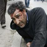 Liste des blessés de la révolution qui nécessitent un suivi psychologique ou des soins à l'étranger