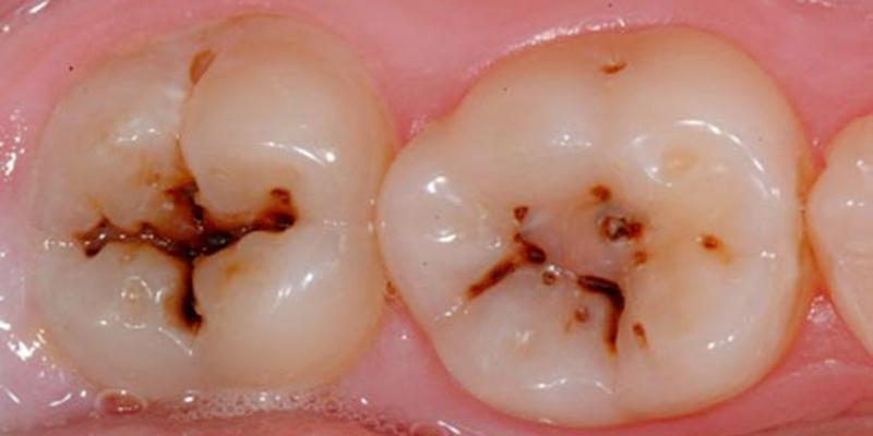 Un nouveau gel aide l'émail des dents à se construire