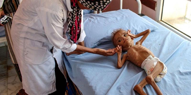 La faim sévit toujours plus dans le monde, dénonce l'ONU<