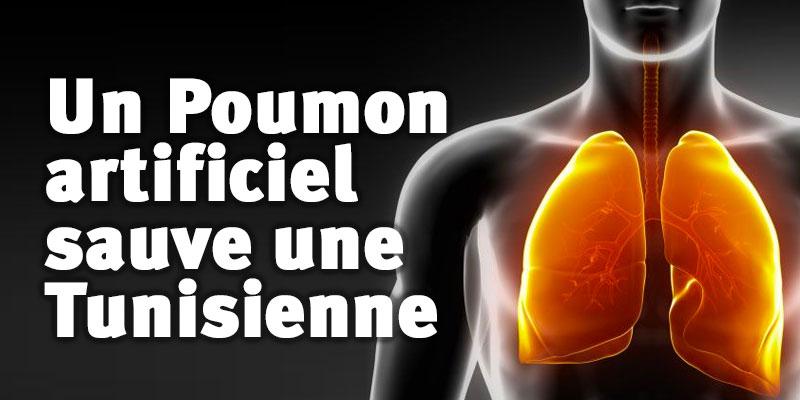 Un poumon artificiel sauve une Tunisienne du Covid