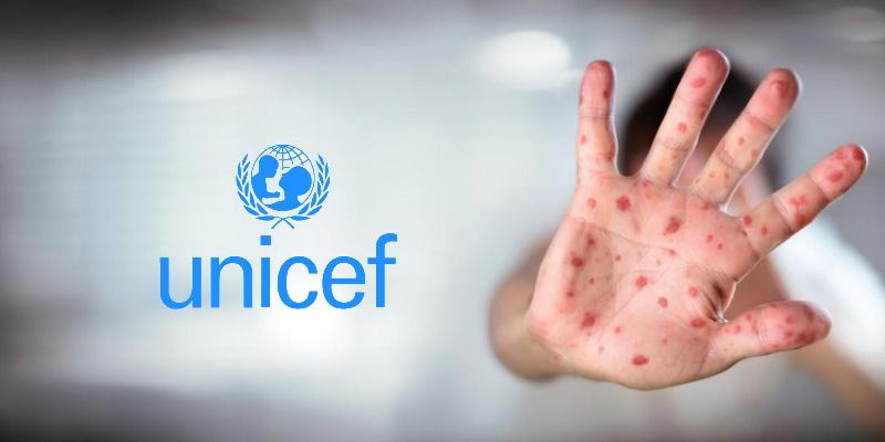 UNICEF : La rougeole peut sévir à nouveau à cause du coronavirus