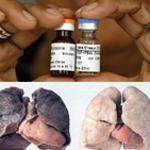 Le vaccin contre le cancer du poumon, prochainement en Tunisie